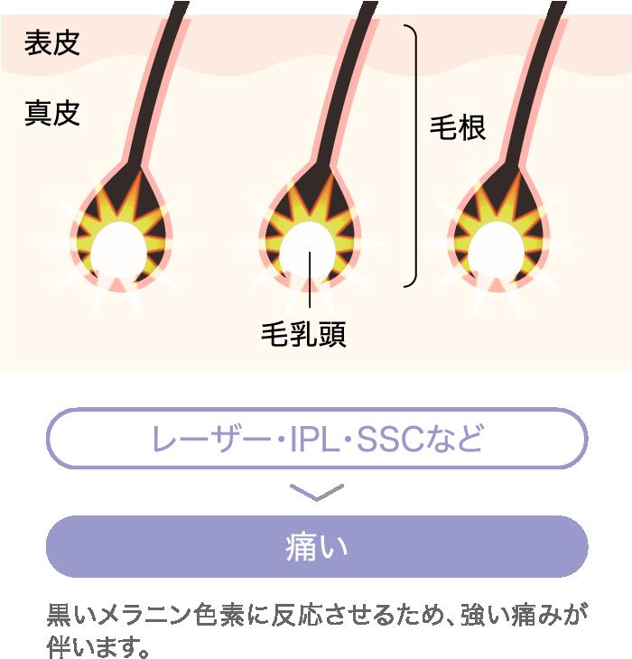 レーザー・IPL・SSCなどは痛い。黒いメラニン色素に反応させるため、強い痛みが伴います。